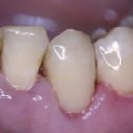вид зубов после снятия коффердама