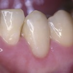 Зубы восстановлены, десна без признаков воспаления