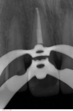 Лечение периодонтита закончено пломбированием канала.
