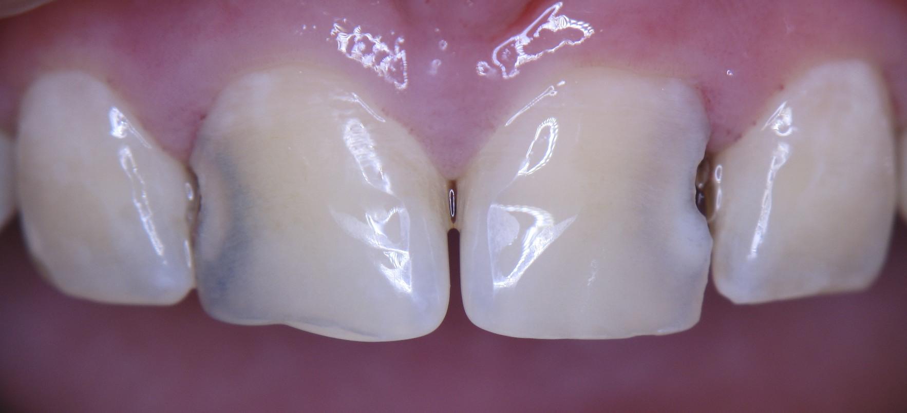 кариозные полости на передних зубах