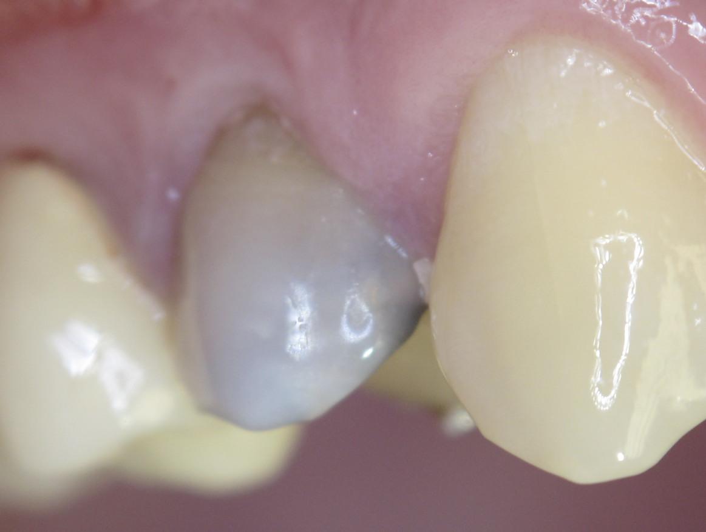 Зуб, ранее лечённый резорцин-формалиновым методом. Имеет характерный розово-серую окраску.