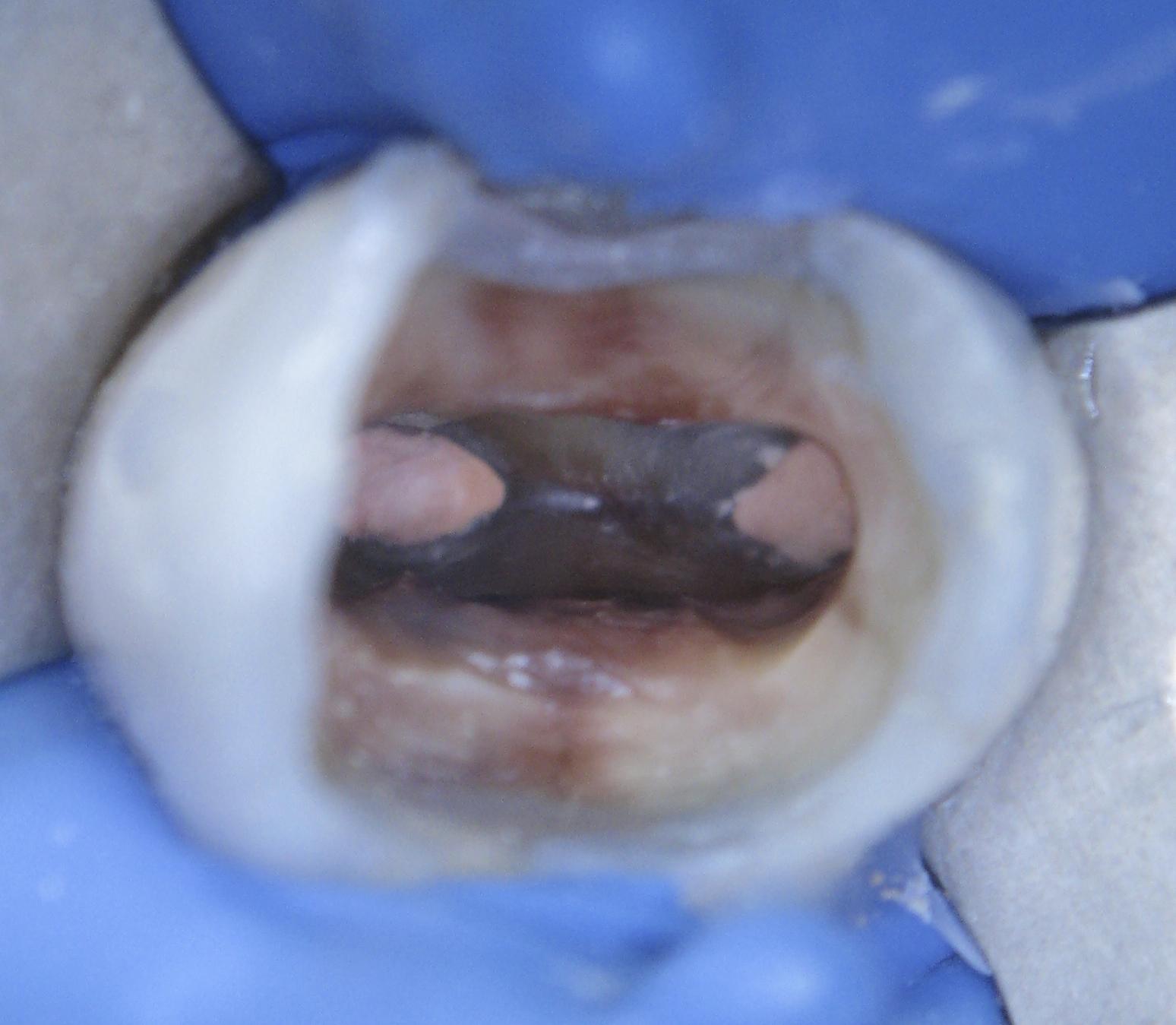 После проведённого внутриканального отбеливания пигментация  практически отсутствует.