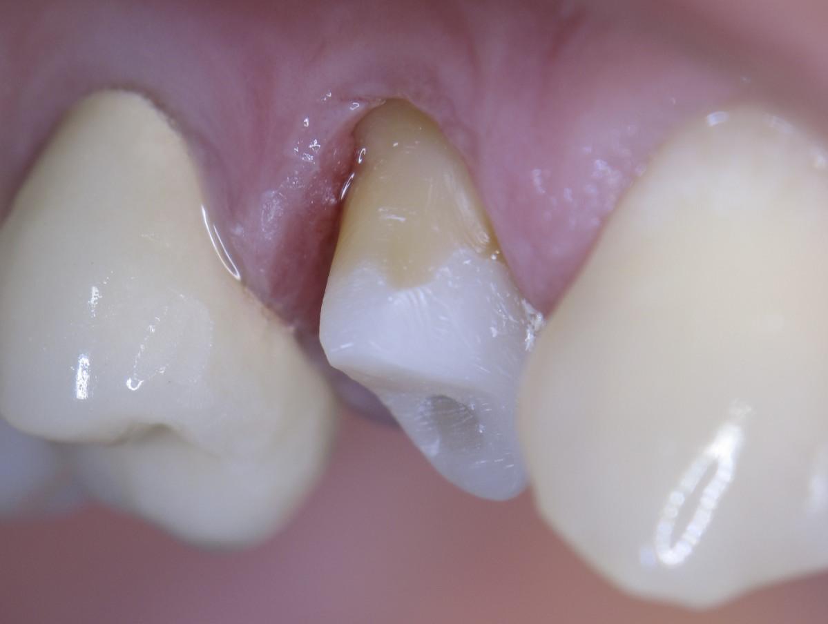 Зуб, подготовленный к коронке.