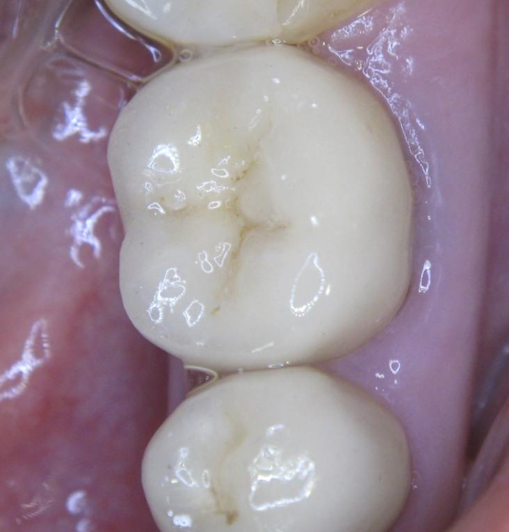 36 зуб